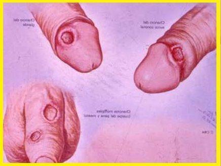 Lllaga o chancro de sífilis