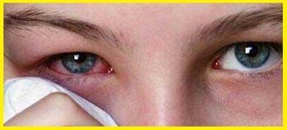 Curar los ojos rojos