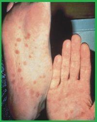 Erupciones cutáneas causadas por la sífilis